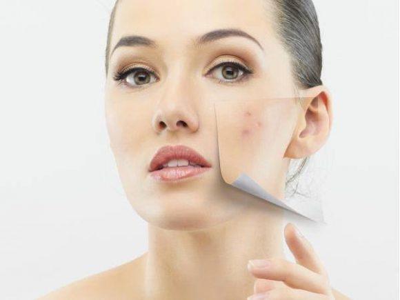 Cheminis veido odos pilingas - procedūra Rudeniui Klaipedoje
